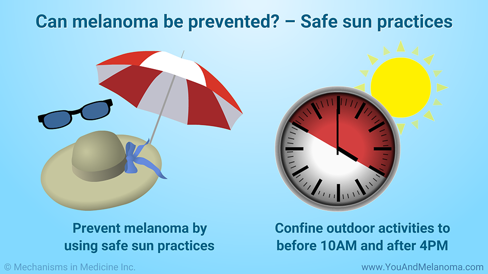 Can melanoma be prevented? – Safe sun practices