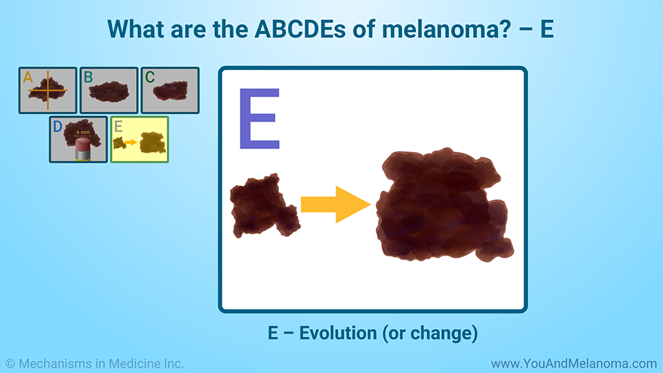 What are the ABCDEs of melanoma? – E