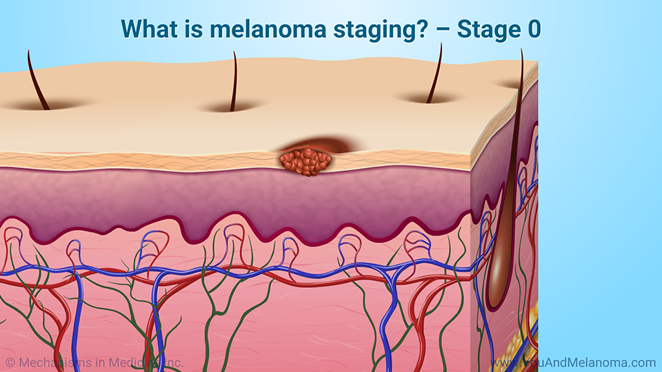 What is melanoma staging? – Stage 0