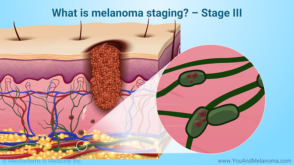What is melanoma staging? – Stage III